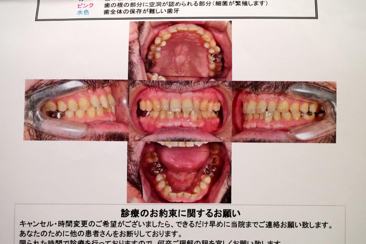 Dental Advice